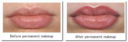 permanent-makeup-lips