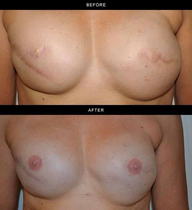 3D-nipple-tattoo-A.jpg