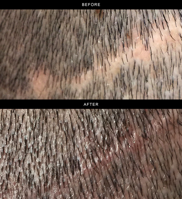Scalp-repigmentation.jpg