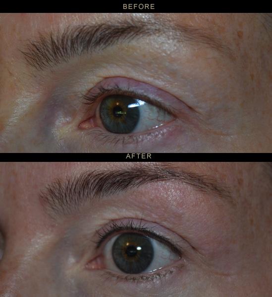 eyes40.jpg