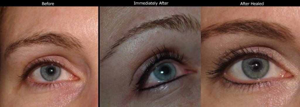 Permanent Eyeliner Photos ➤ Los Gatos, Bay Area ➤ Timeless